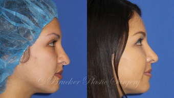 Patient 1c Revision Rhinoplasty Before and After