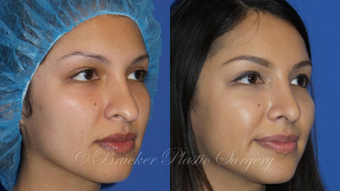 Patient 1a Revision Rhinoplasty Before and After