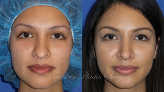 Patient 1b Revision Rhinoplasty Before and After