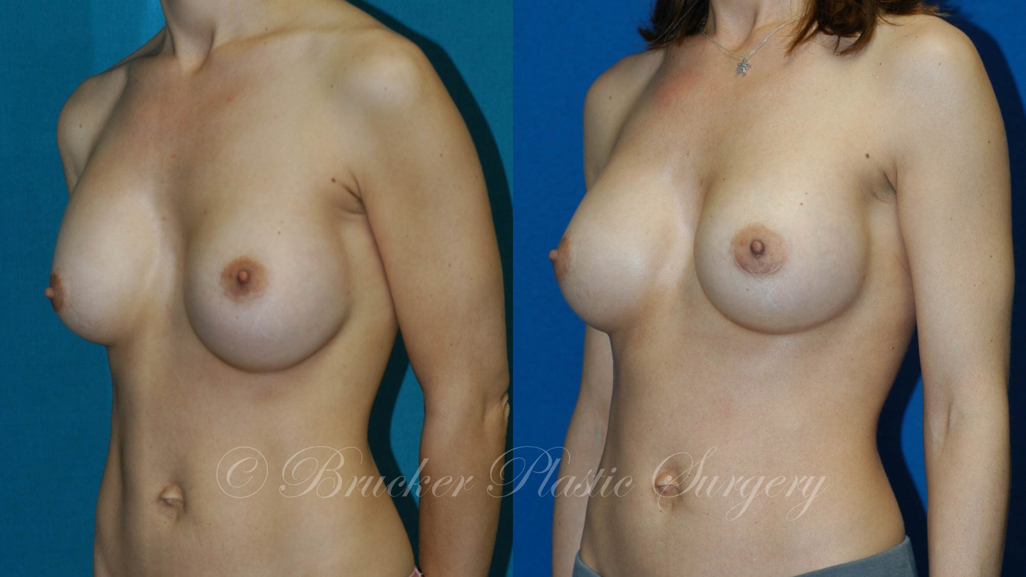 Patient 4b Aesthetic Breast Reconstruction Before and After