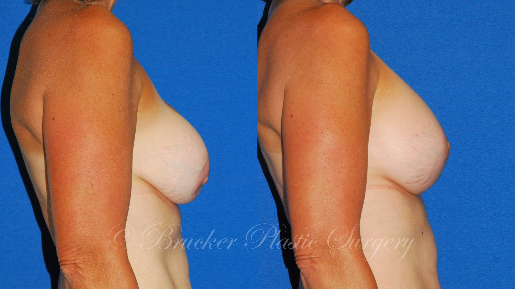 Patient 5b Aesthetic Breast Reconstruction Before and After