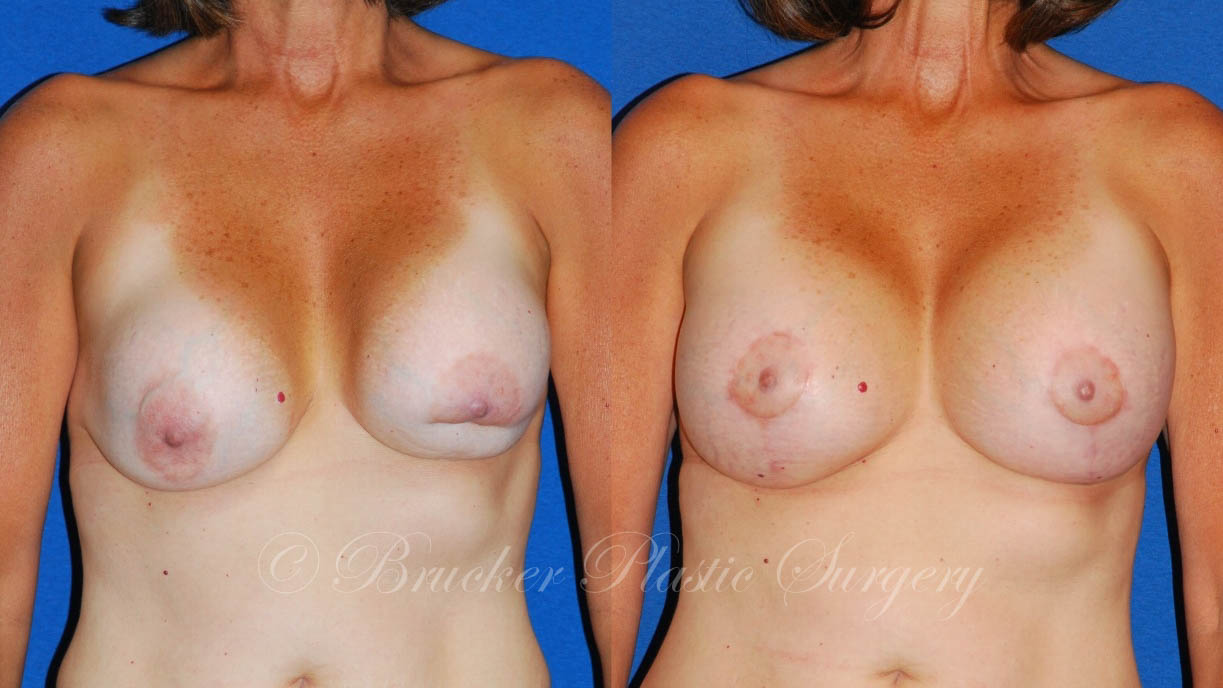 Patient 5c Aesthetic Breast Reconstruction Before and After