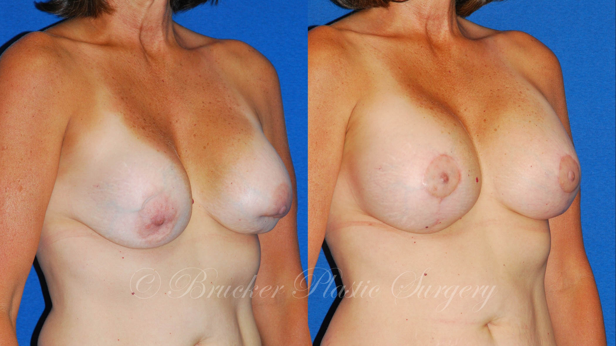 Patient 5a Aesthetic Breast Reconstruction Before and After