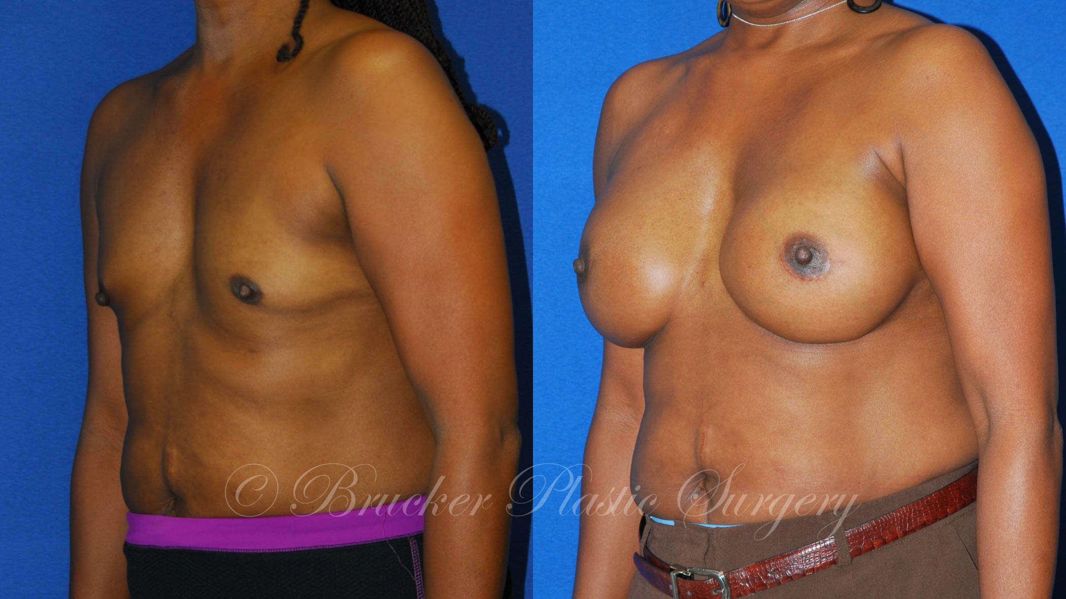 Patient 1b Aesthetic Breast Reconstruction Before and After