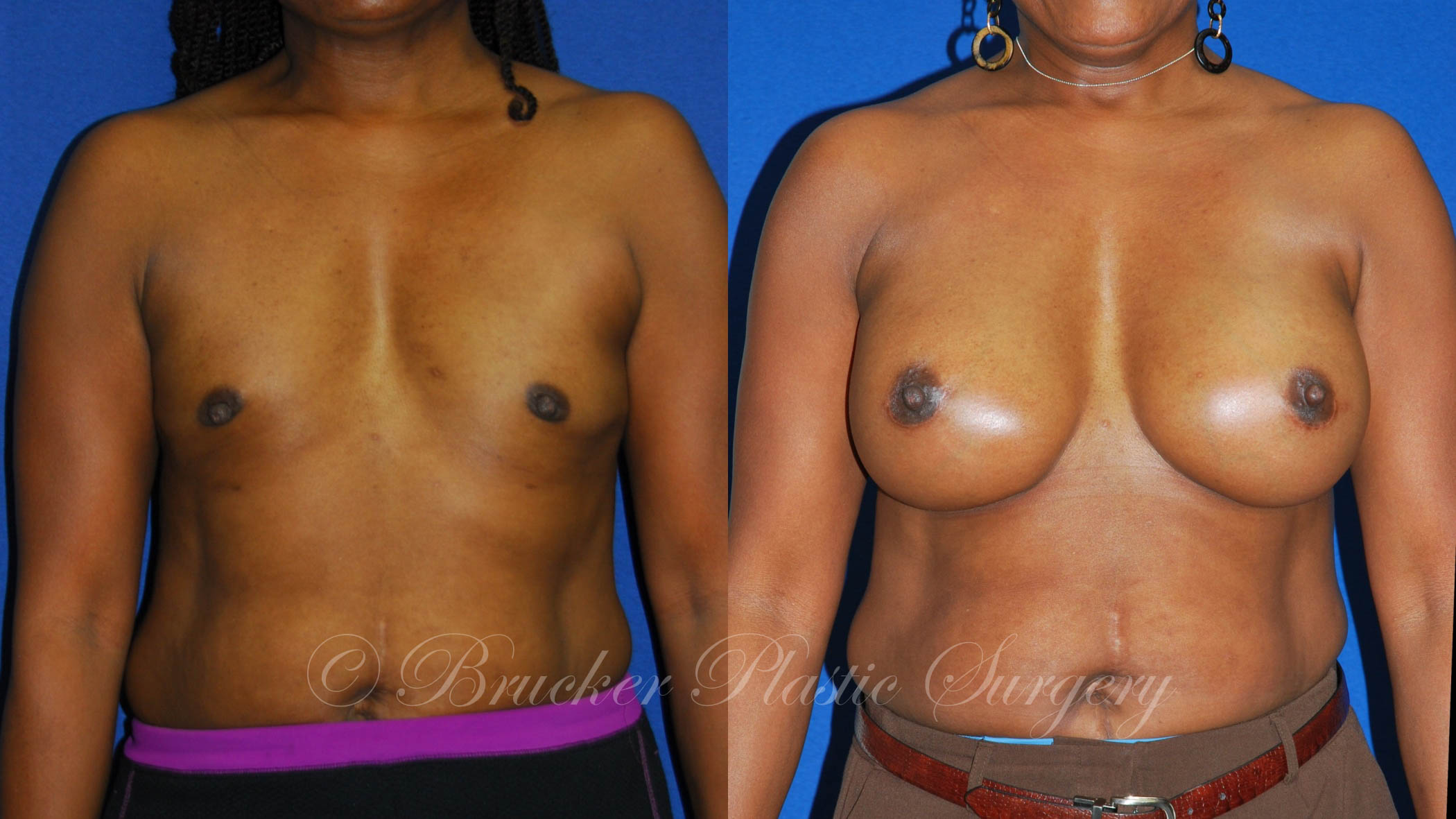 Patient 1a Aesthetic Breast Reconstruction Before and After