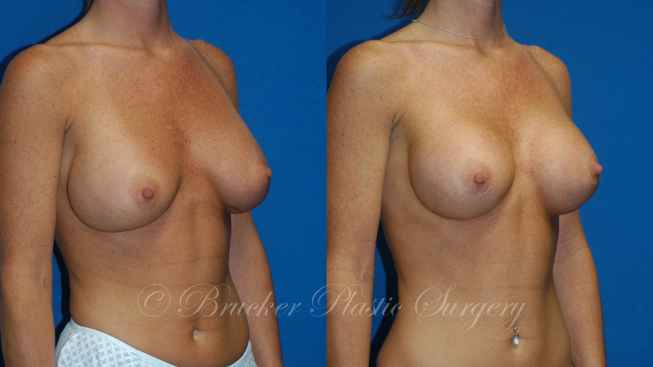 Patient 2b Aesthetic Breast Reconstruction Before and After
