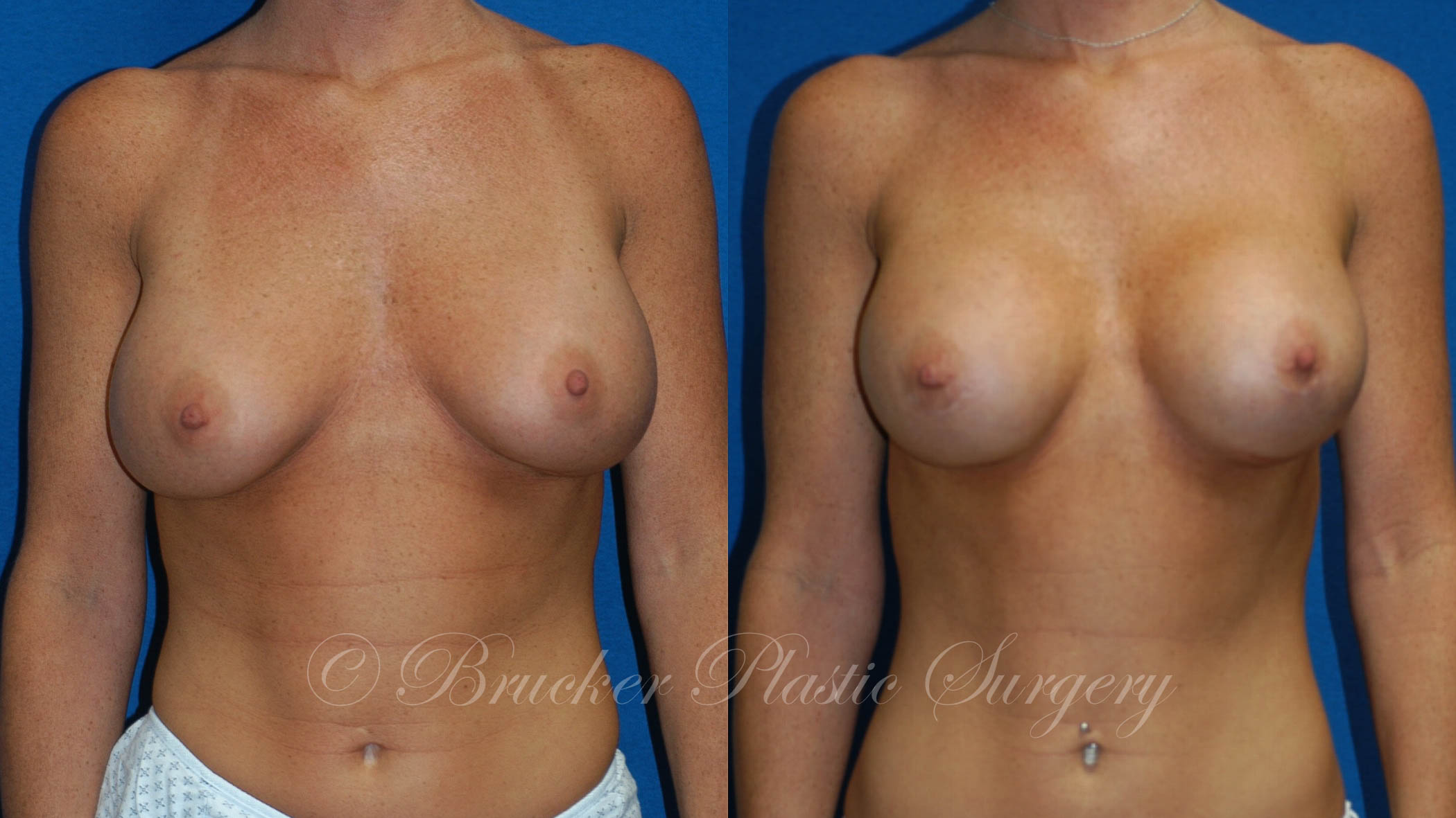 Patient 2a Aesthetic Breast Reconstruction Before and After