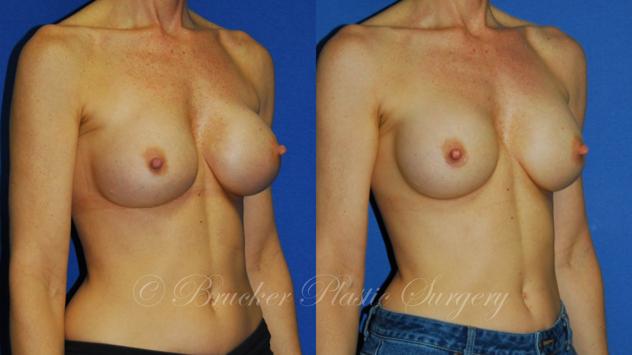 Patient 3b Aesthetic Breast Reconstruction Before and After