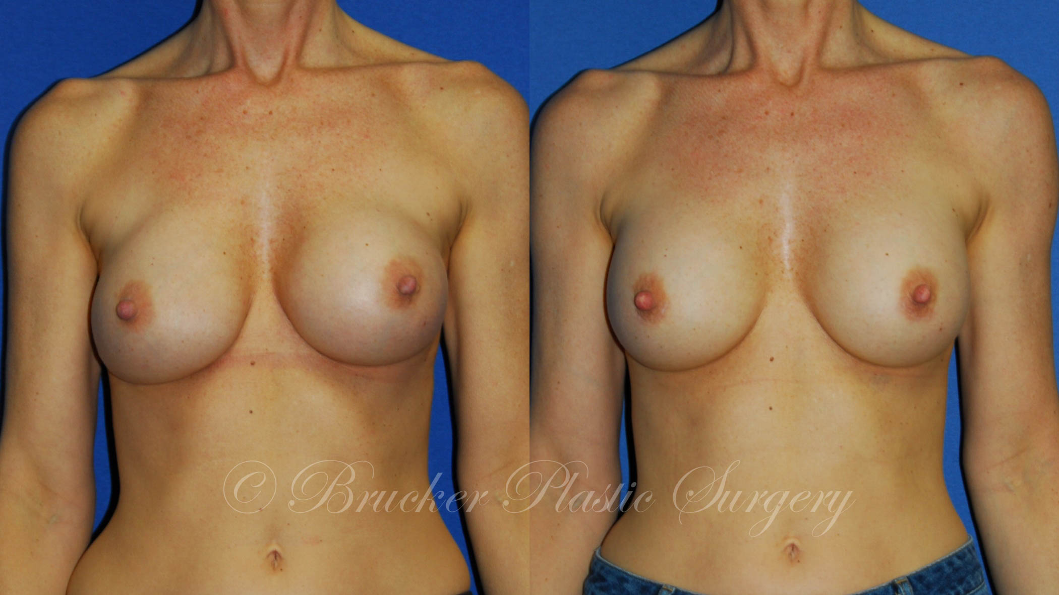 Patient 3a Aesthetic Breast Reconstruction Before and After