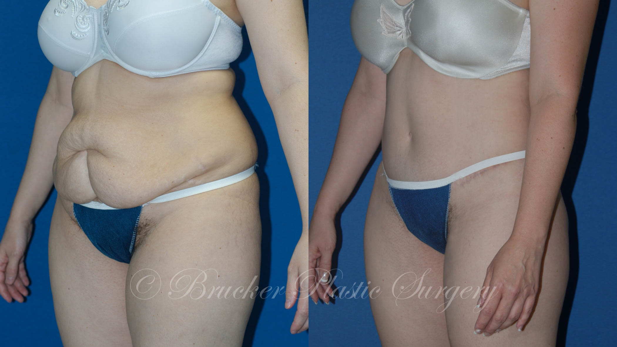 Body Lift Del Mar Patient 1.2