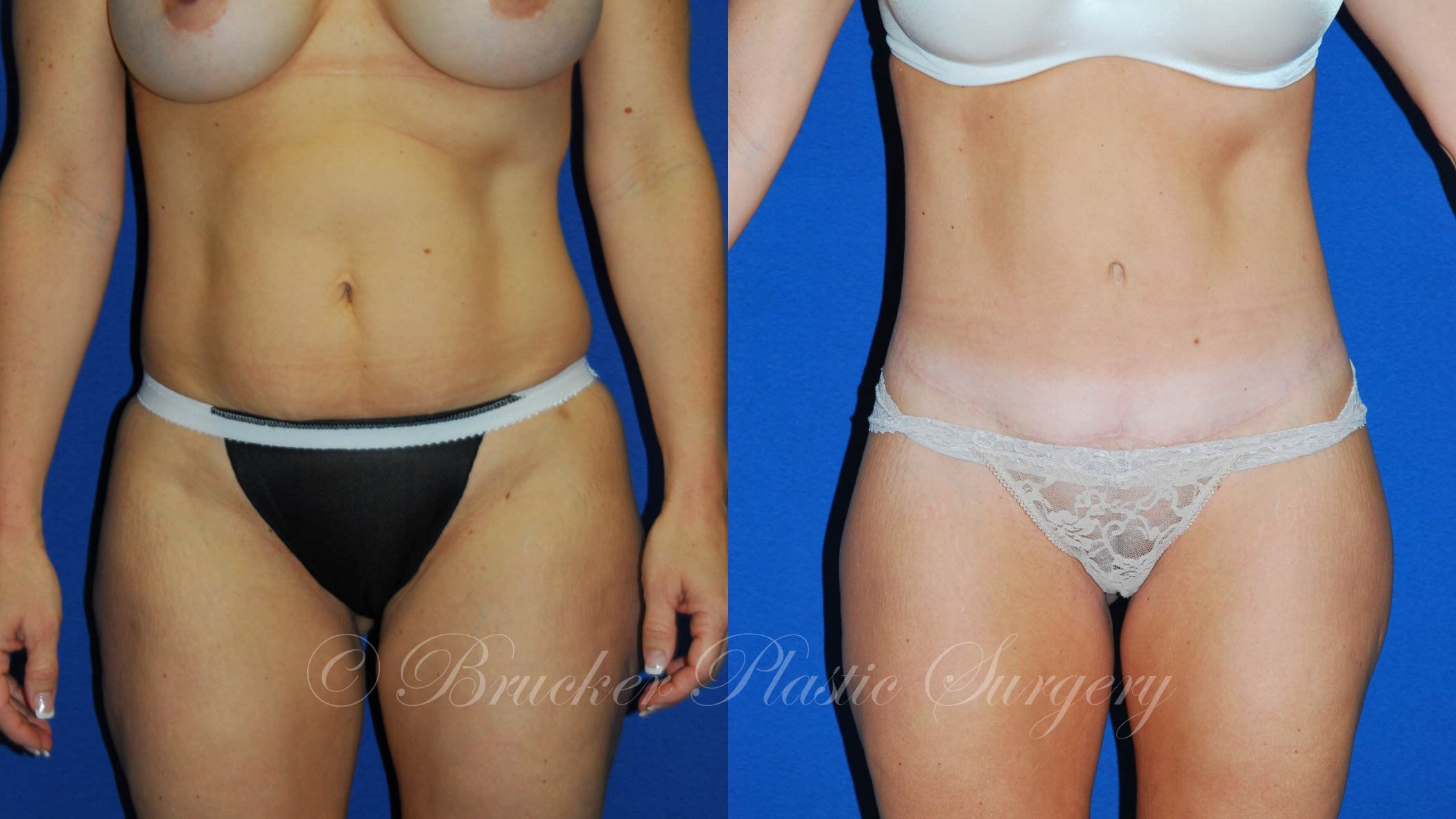 Patient 4b Body Lift Before and After