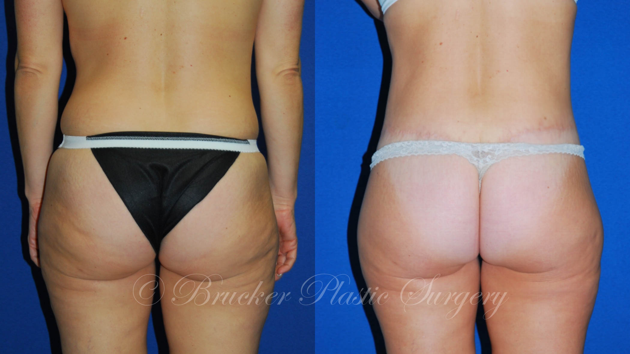 Body Lift Del Mar Patient 2