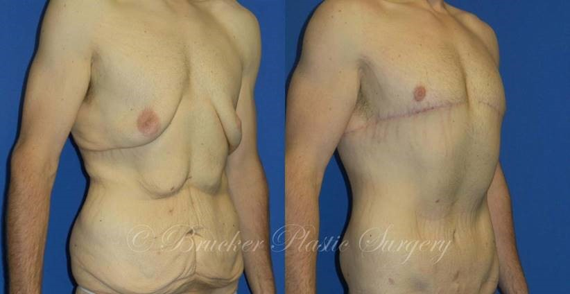 Patient 1b Body Lift Before and After