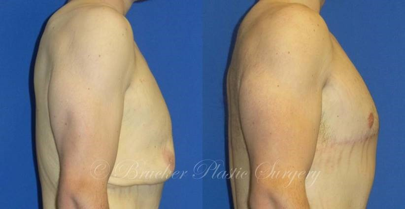 Patient 1c Body Lift Before and After