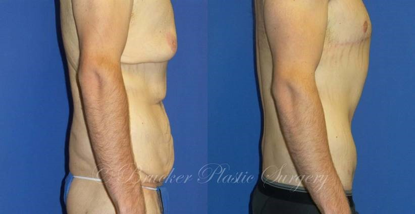 Patient 1d Body Lift Before and After