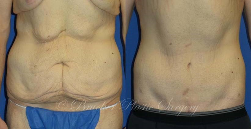 Patient 1f Body Lift Before and After