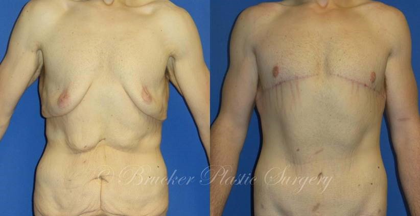 Patient 1g Body Lift Before and After