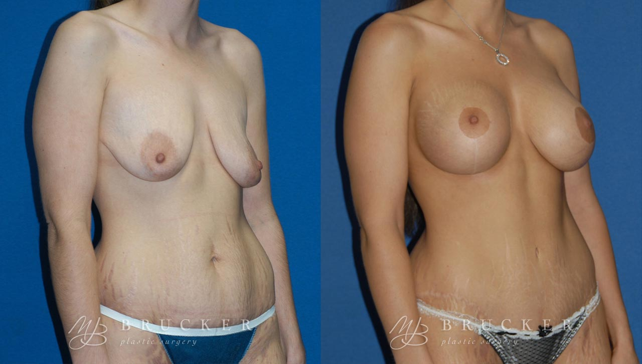 Patient 4b Breast Lift with Augmentation Before and After