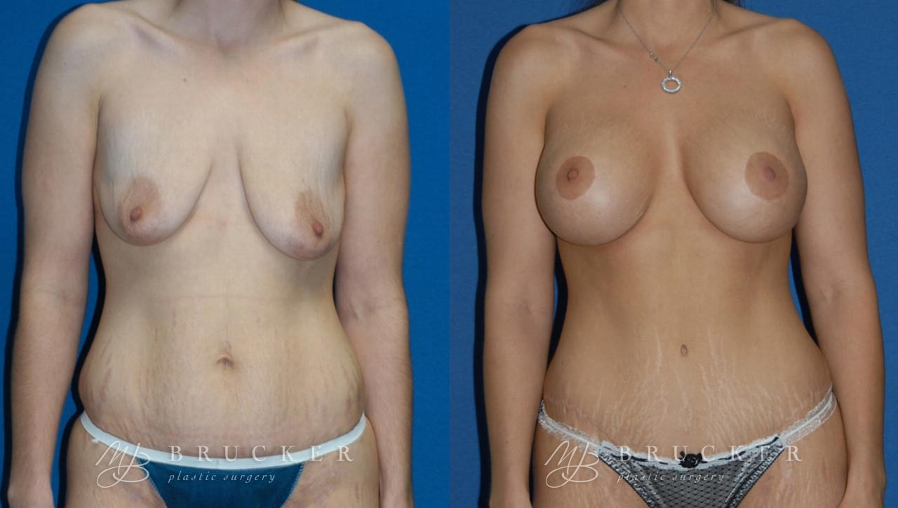 Patient 4a Breast Lift with Augmentation Before and After