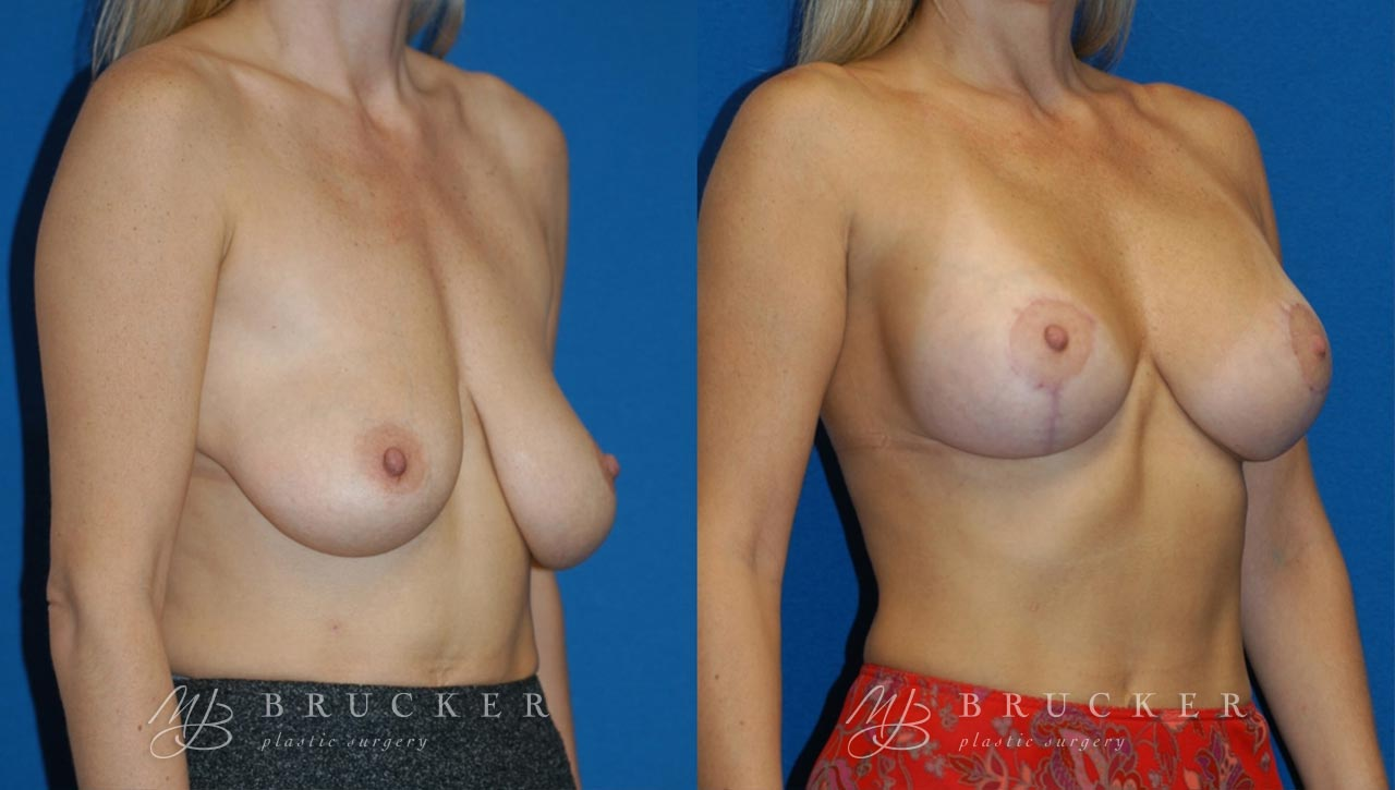Patient 5b Breast Lift with Augmentation Before and After