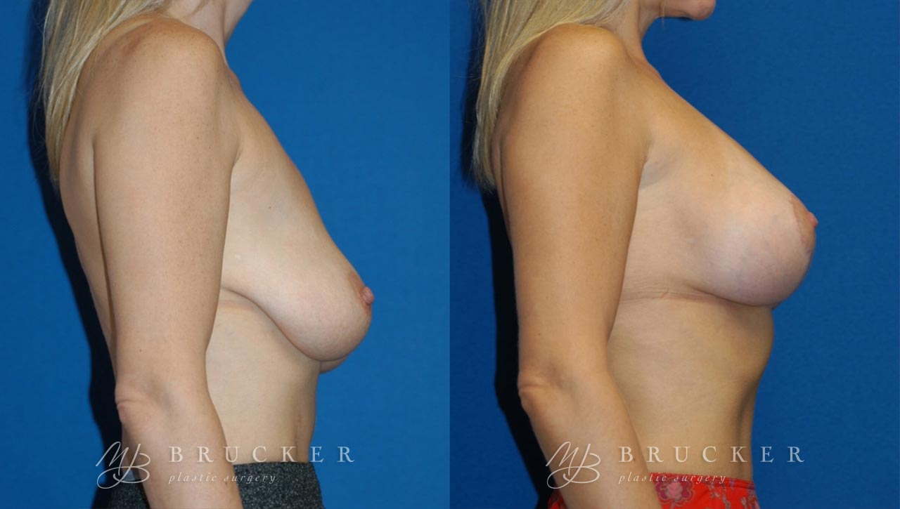 Patient 5a Breast Lift with Augmentation Before and After