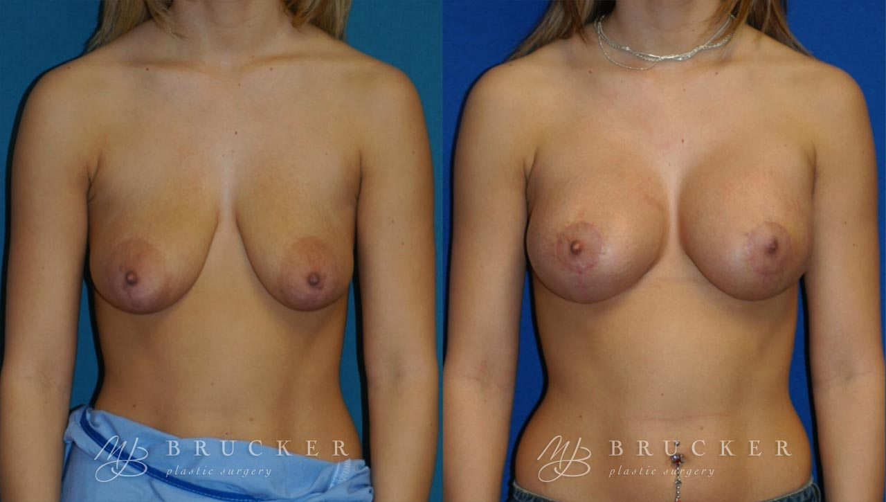 Patient 6b Breast Lift with Augmentation Before and After