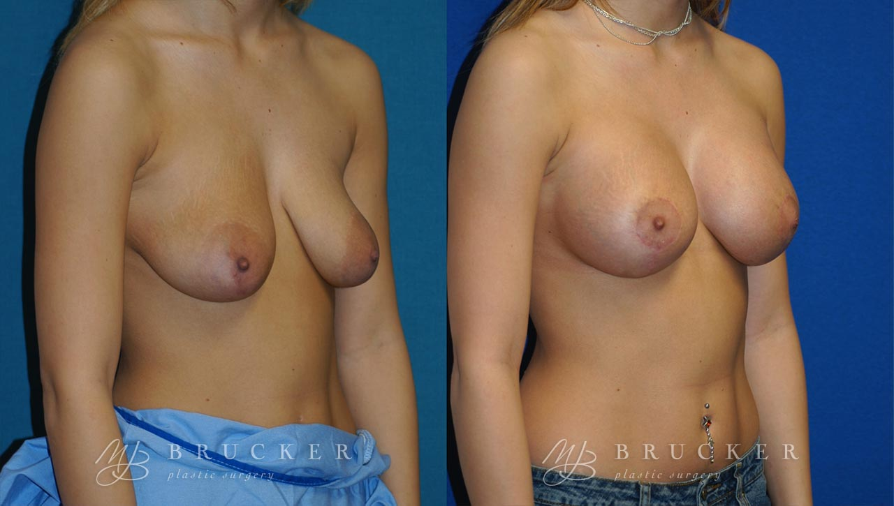 Patient 6a Breast Lift with Augmentation Before and After