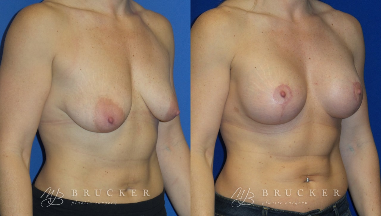 Patient 7b Breast Lift with Augmentation Before and After
