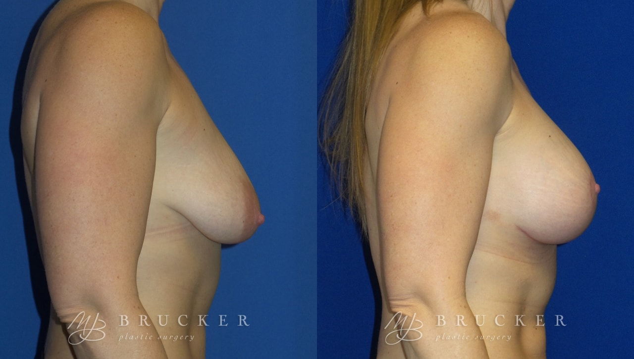 Patient 7c Breast Lift with Augmentation Before and After
