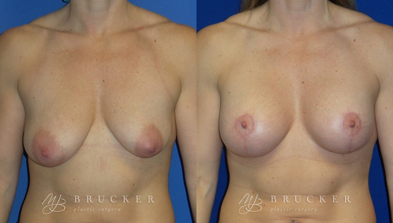 Patient 7a Breast Lift with Augmentation Before and After