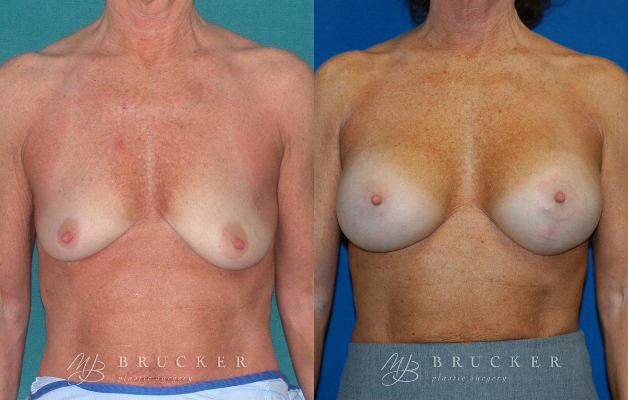 Patient 1b Breast Lift with Augmentation Before and After