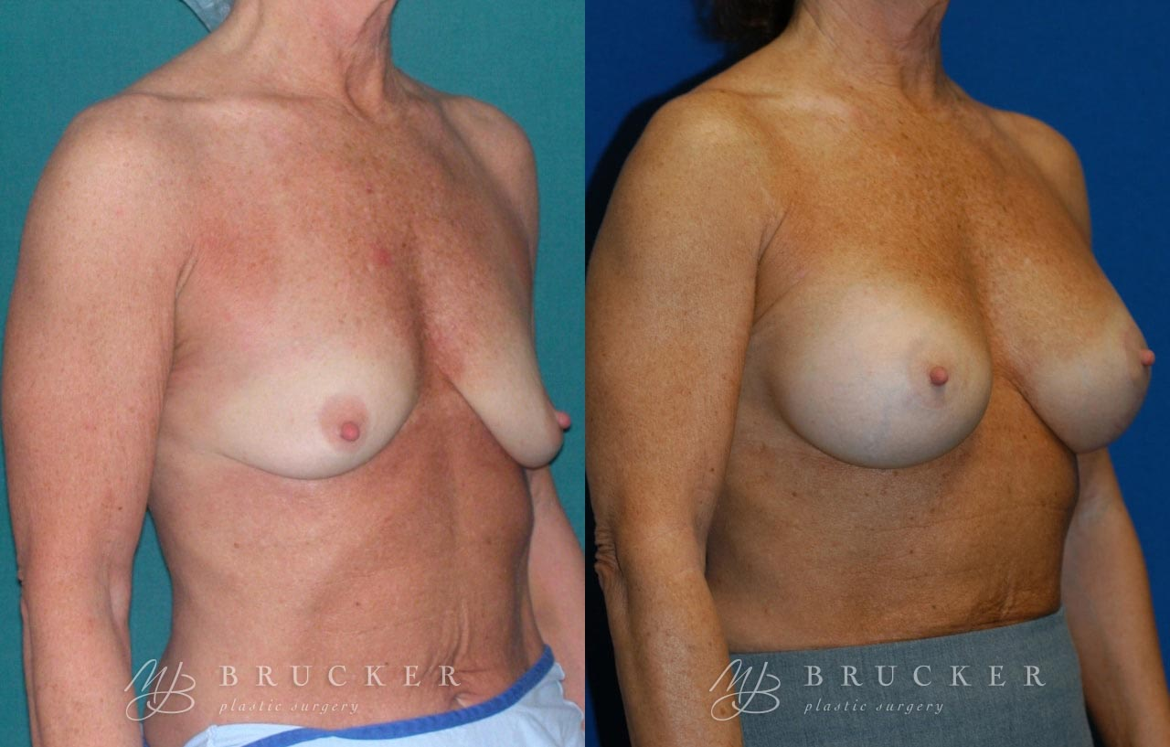 Patient 1c Breast Lift with Augmentation Before and After