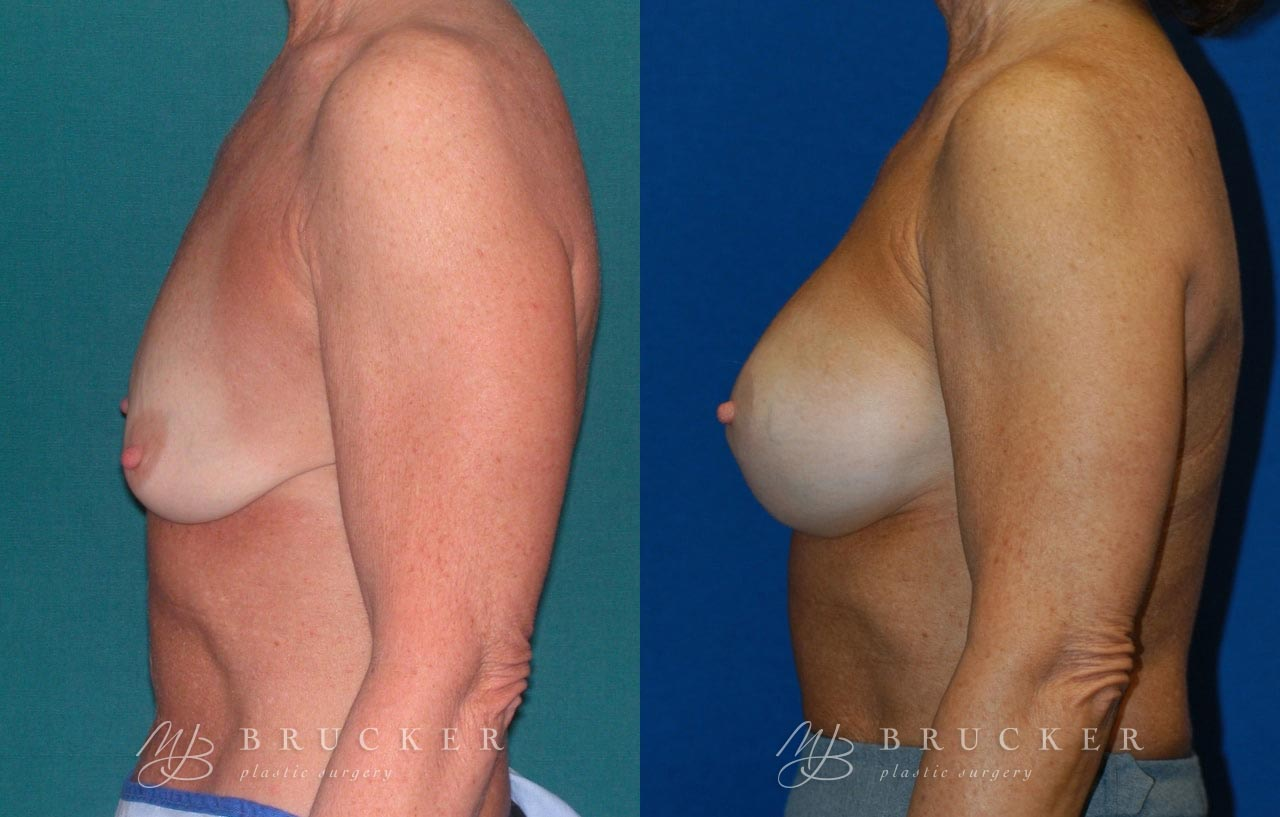 Patient 1d Breast Lift with Augmentation Before and After