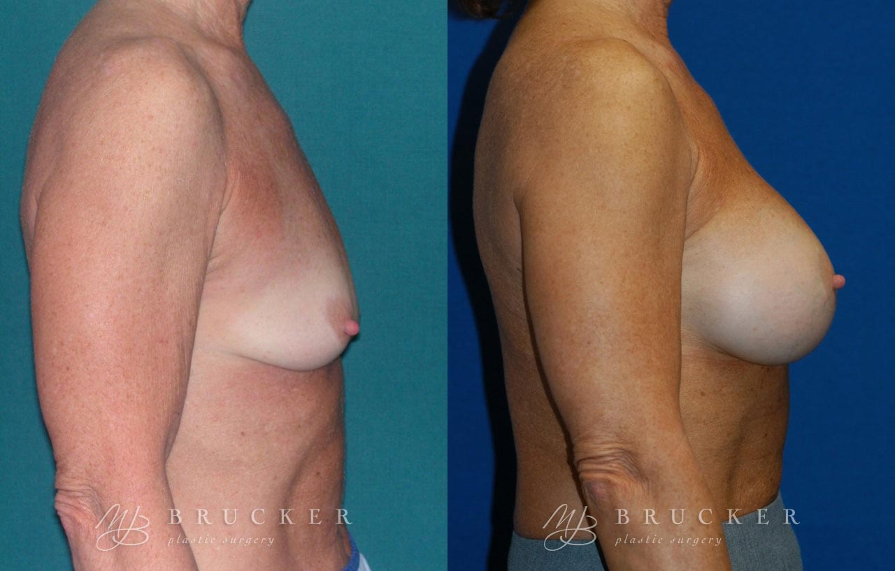 Patient 1a Breast Lift with Augmentation Before and After
