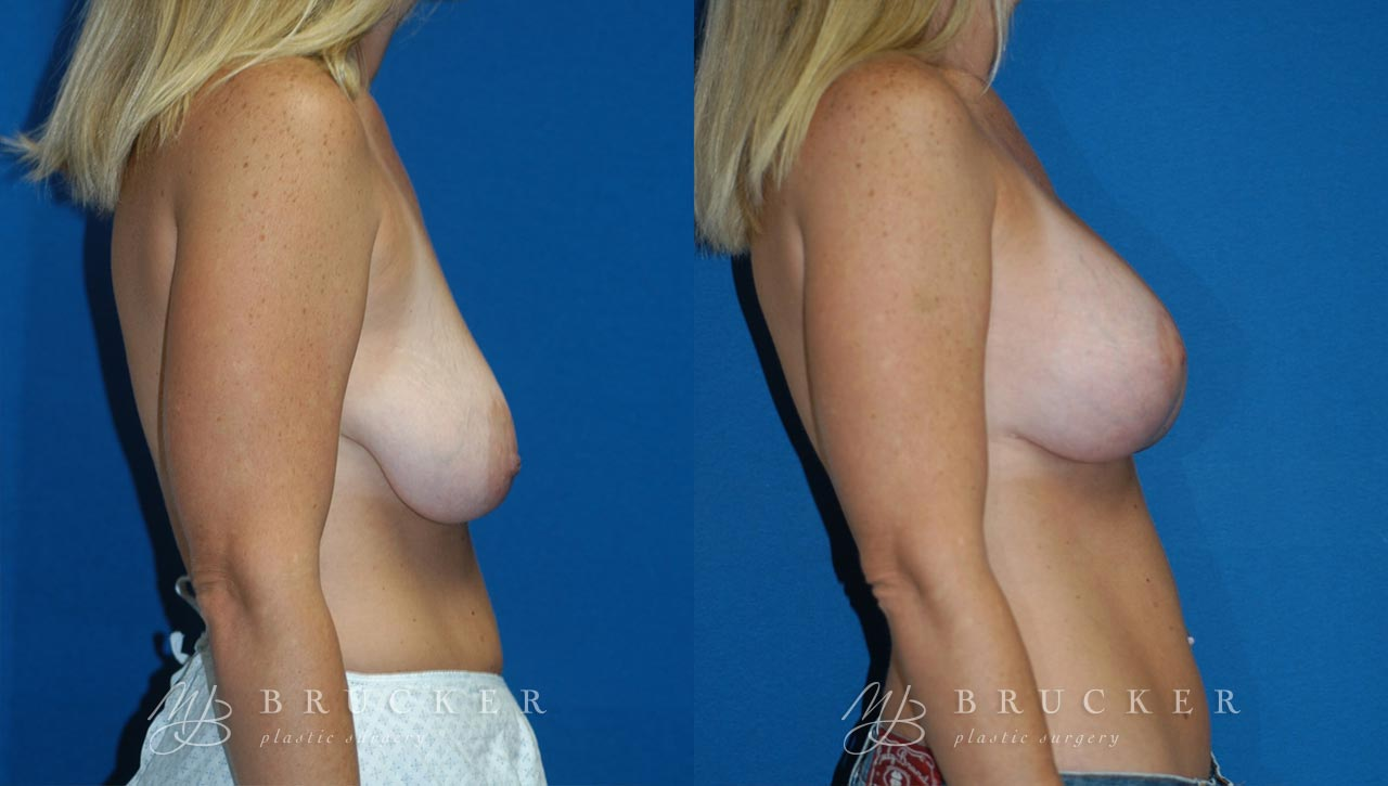 Patient 2b Breast Lift with Augmentation Before and After