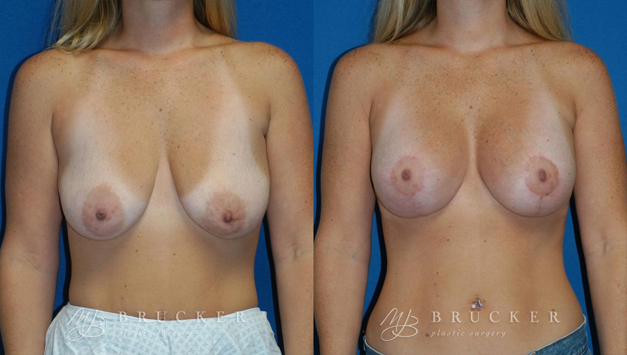 Patient 2c Breast Lift with Augmentation Before and After
