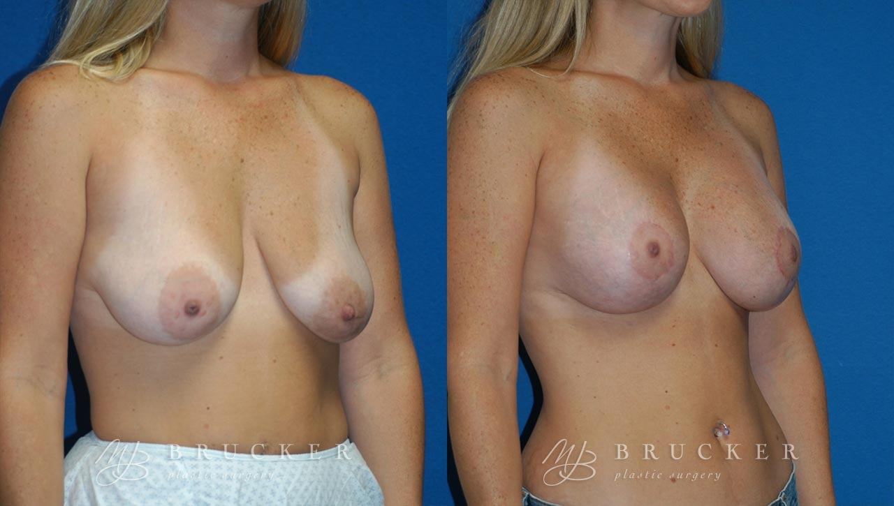 Patient 2a Breast Lift with Augmentation Before and After