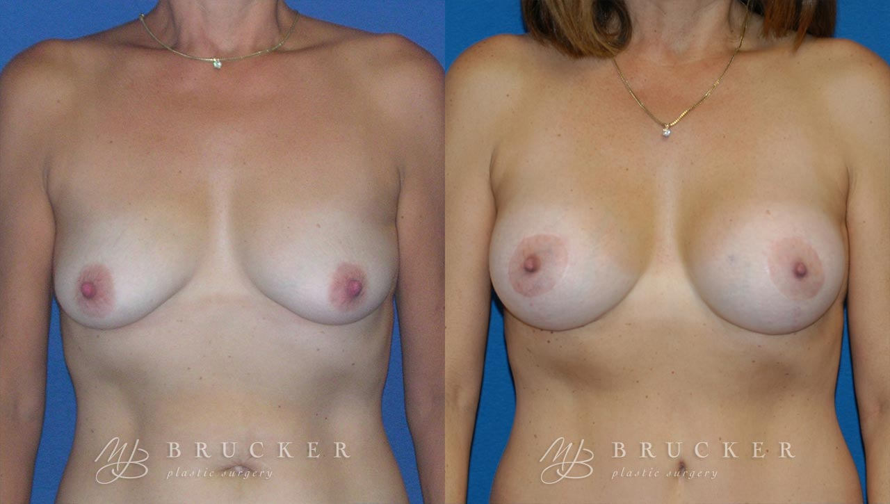 Patient 3b Breast Lift with Augmentation Before and After