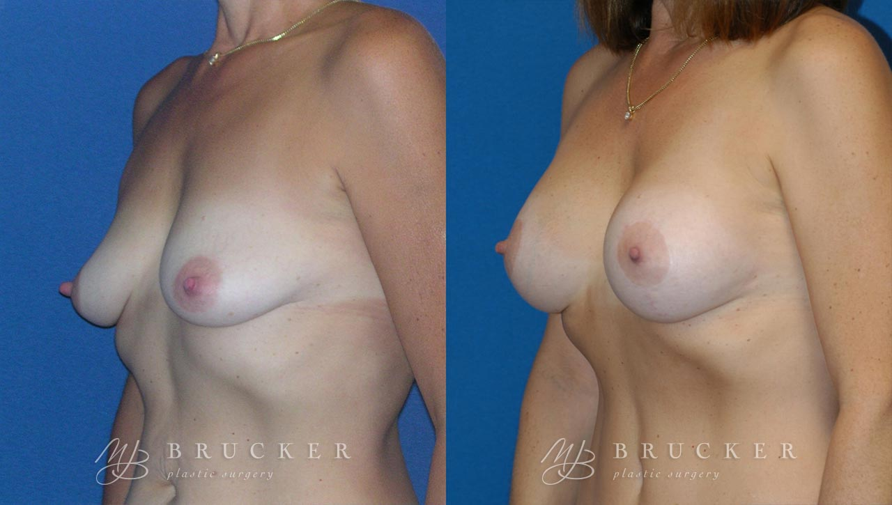 Patient 3c Breast Lift with Augmentation Before and After