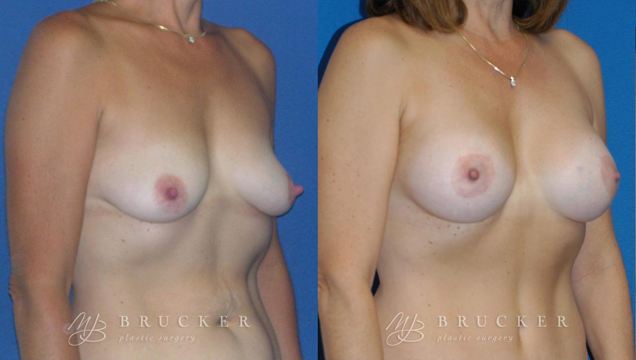 Patient 3d Breast Lift with Augmentation Before and After