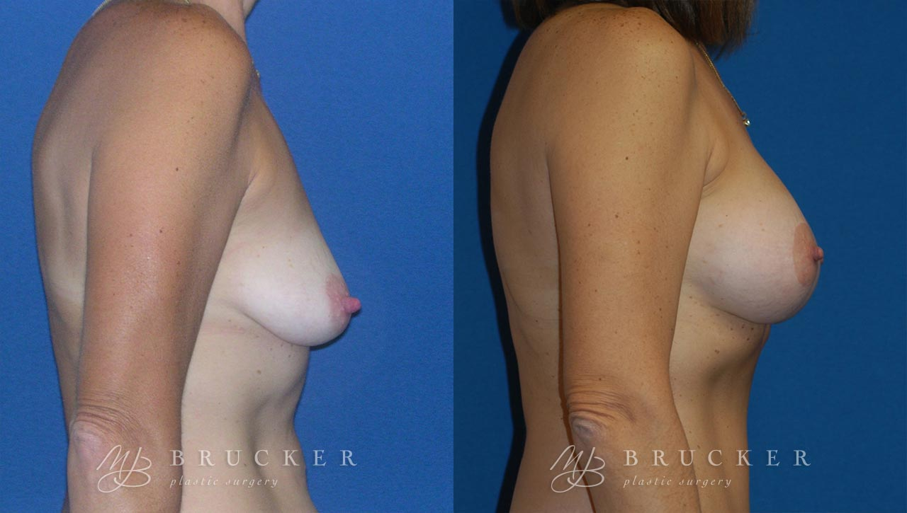 Patient 3a Breast Lift with Augmentation Before and After