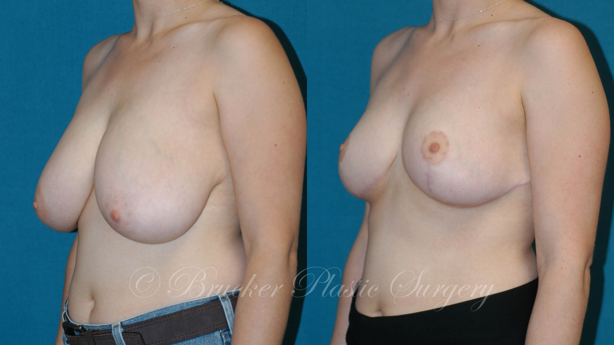 Breast Reduction Del Mar Patient 1.1