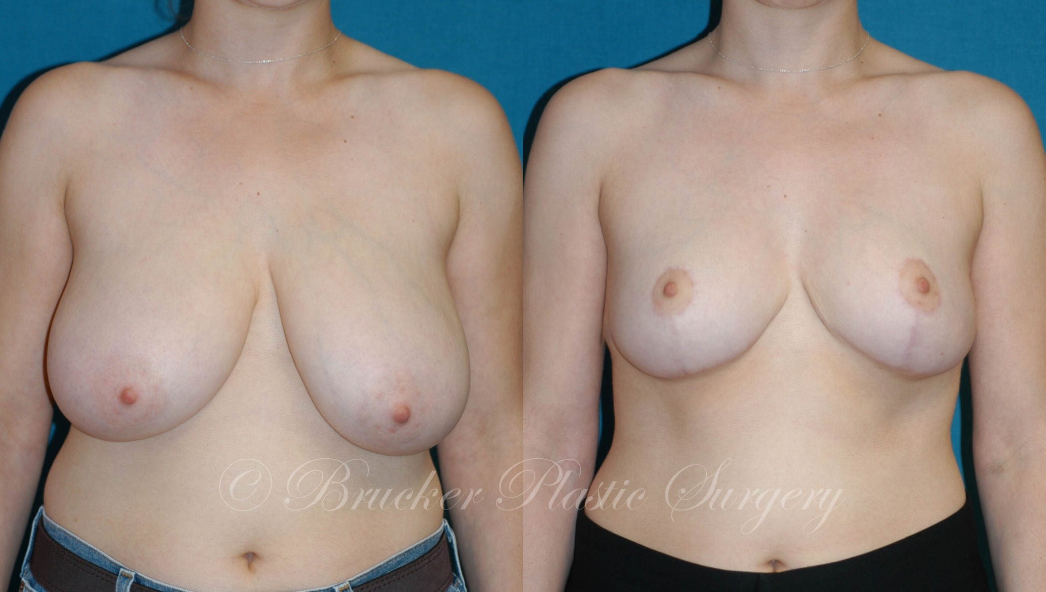 Breast Reduction Del Mar Patient 1