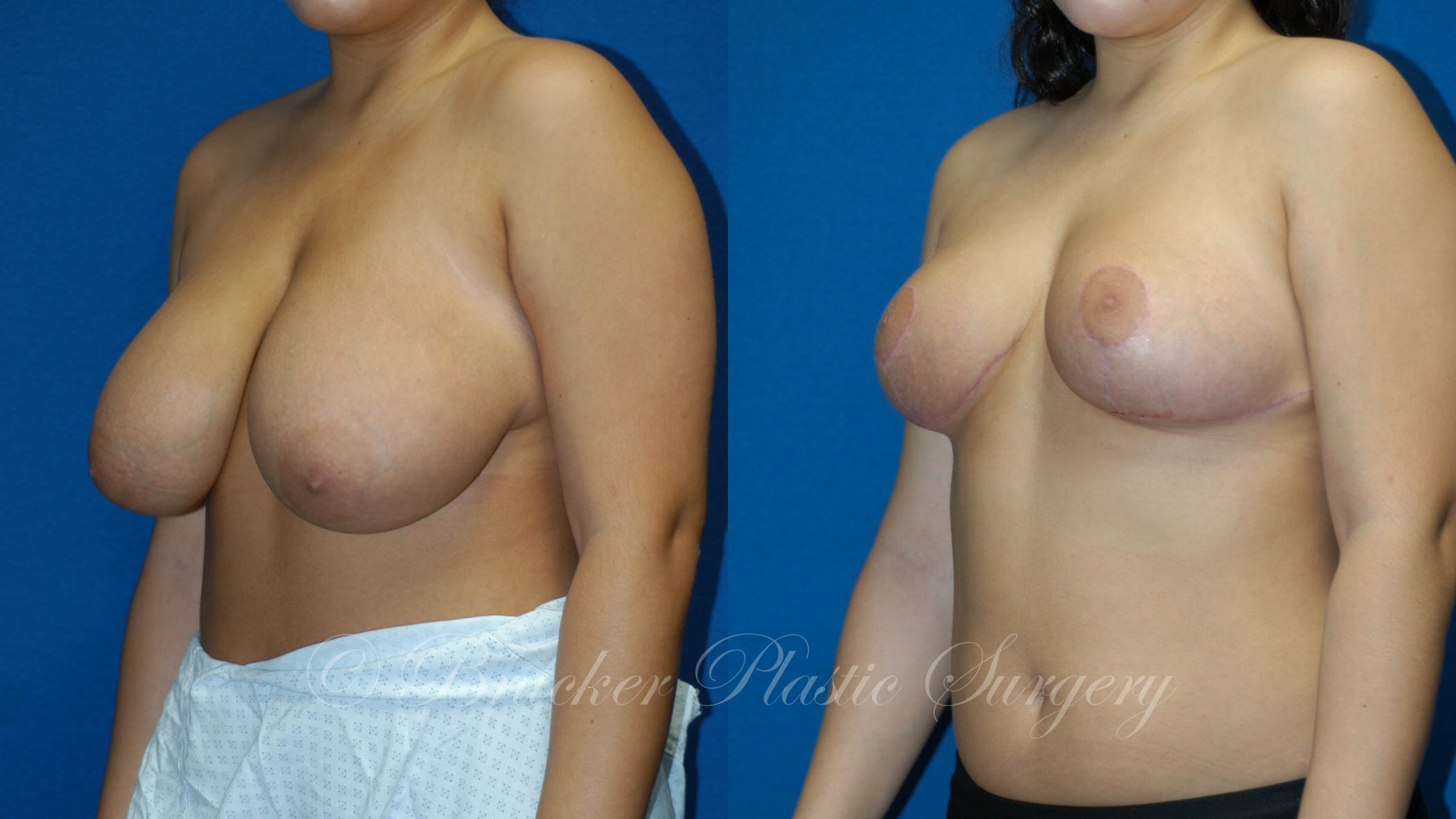 Breast Reduction La Jolla Patient 1.2