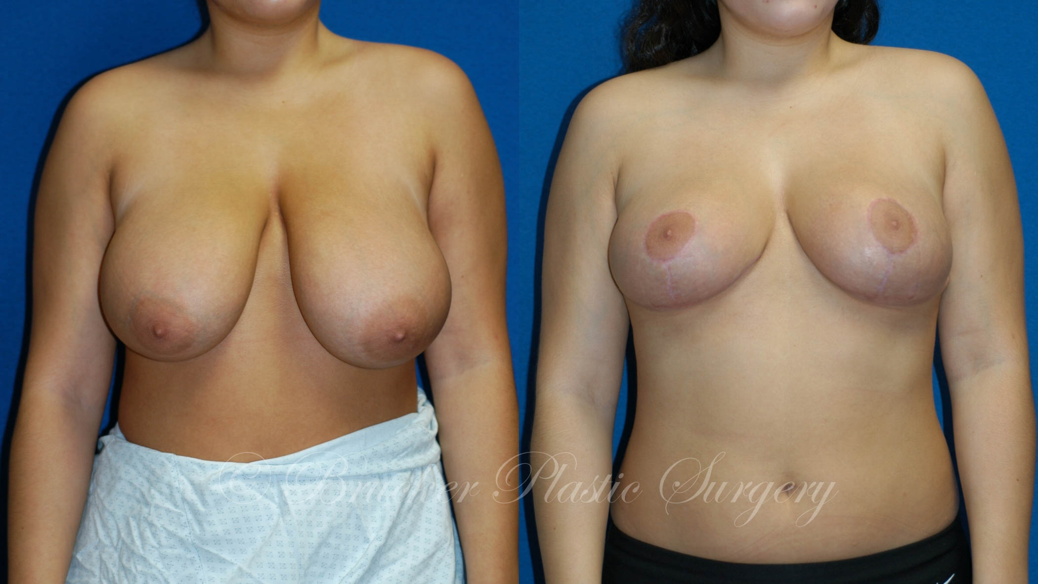 Breast Reduction La Jolla Patient 1