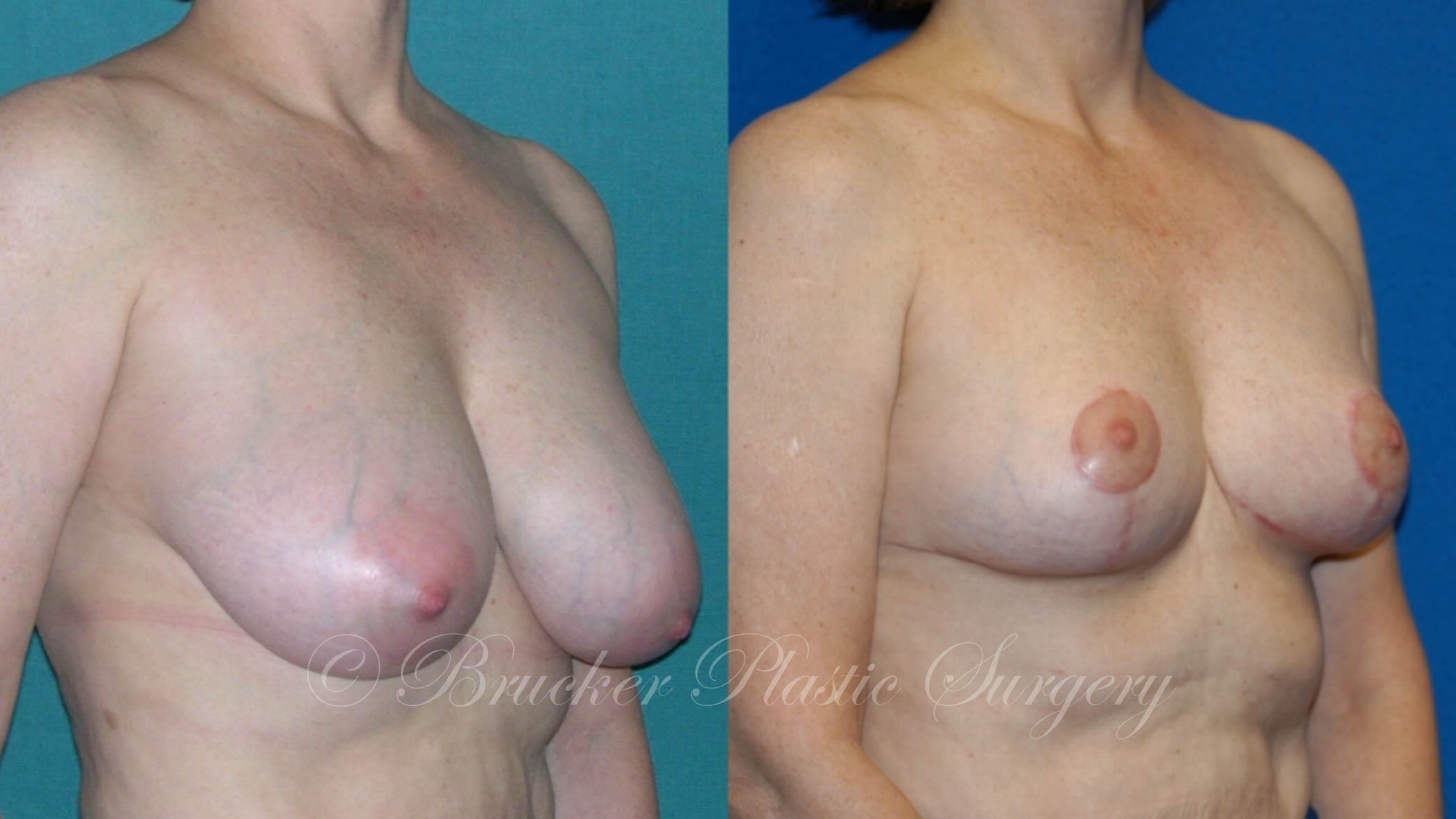 Breast Reduction La Jolla Patient 2.1