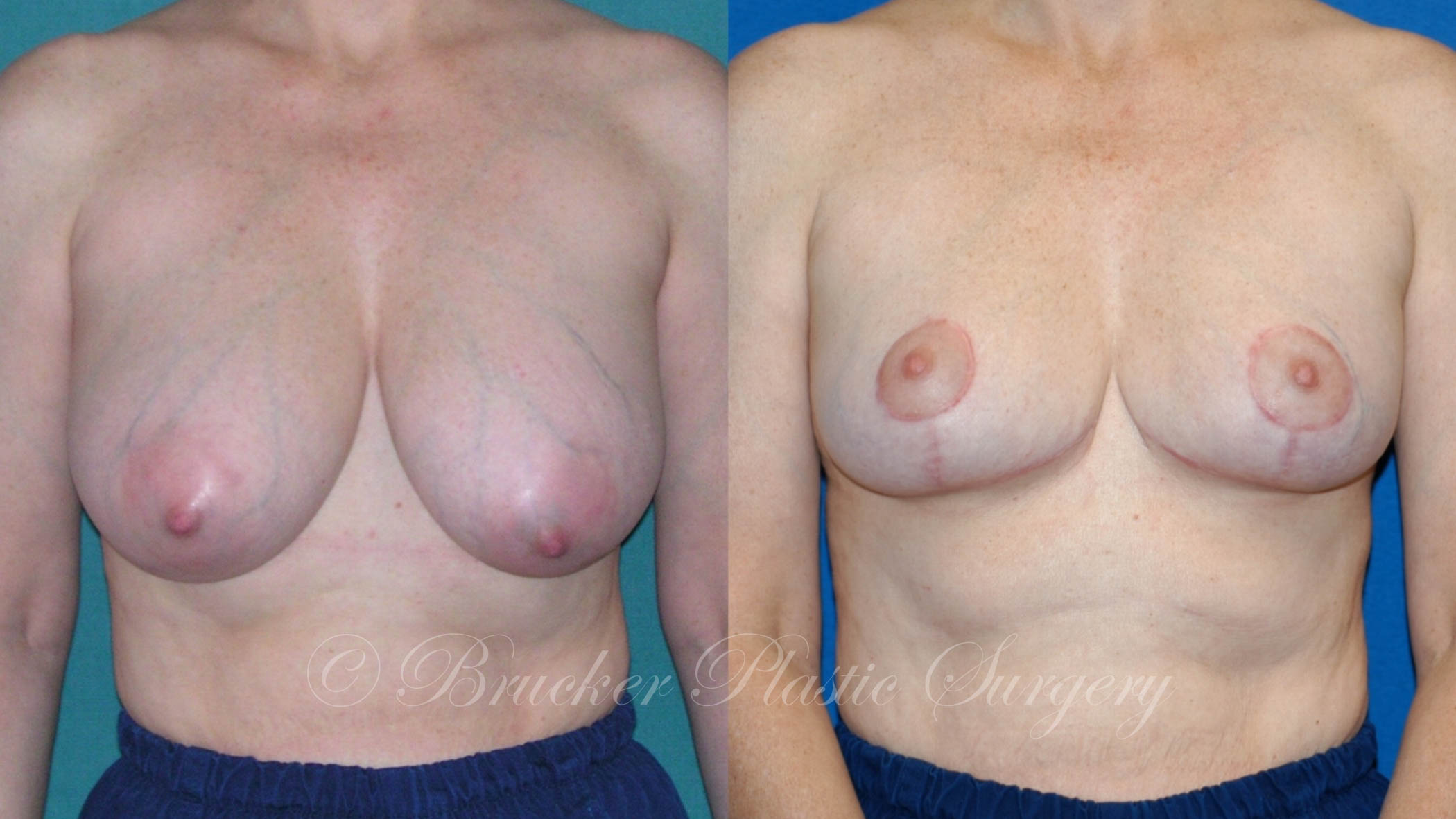 Breast Reduction La Jolla Patient 2.2