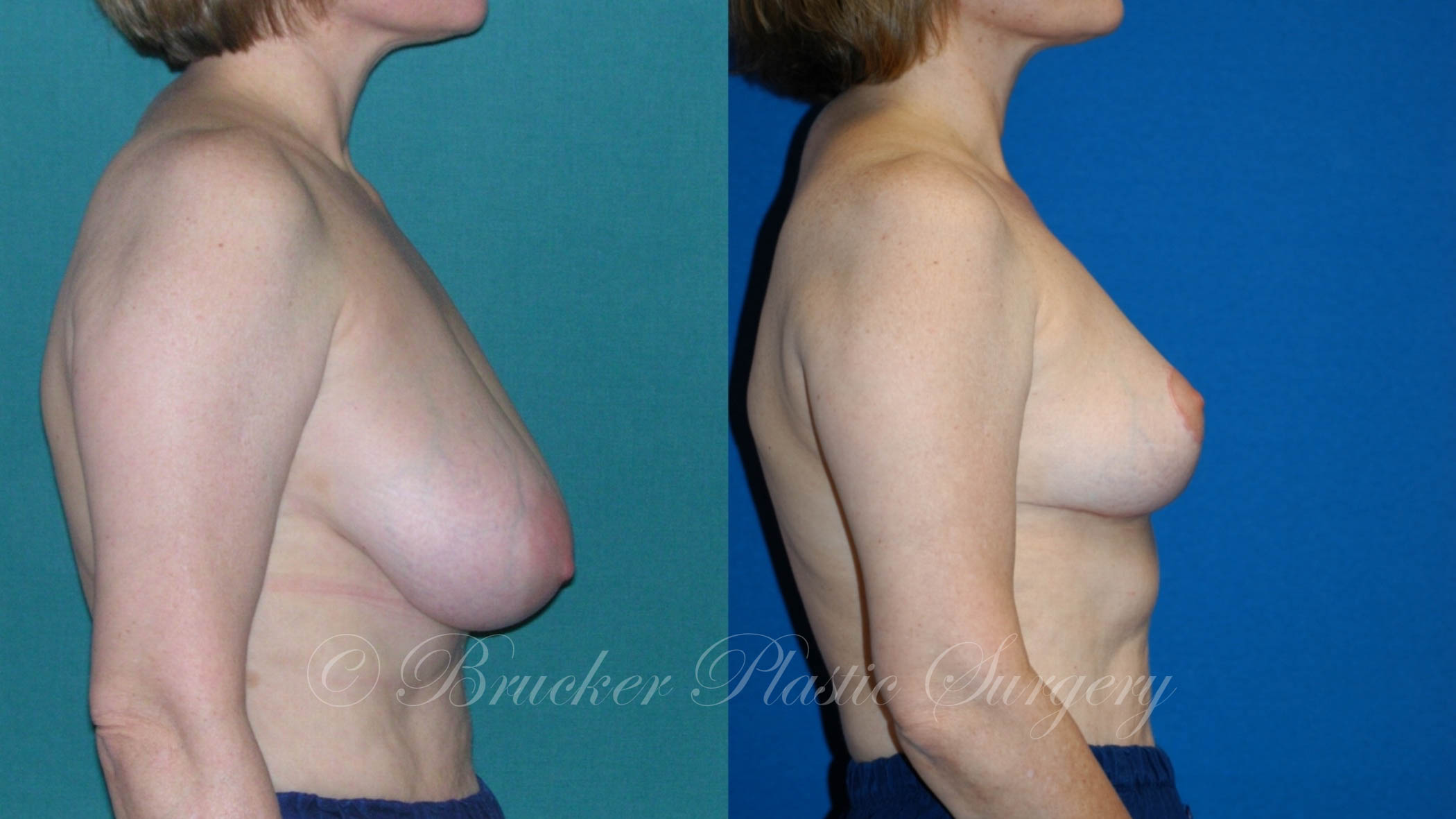 Breast Reduction La Jolla Patient 2