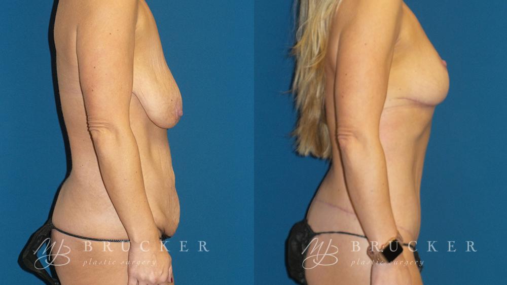 DrBrucker_LaJolla_Body_Lift_B&A_Patient5_Side(Right)