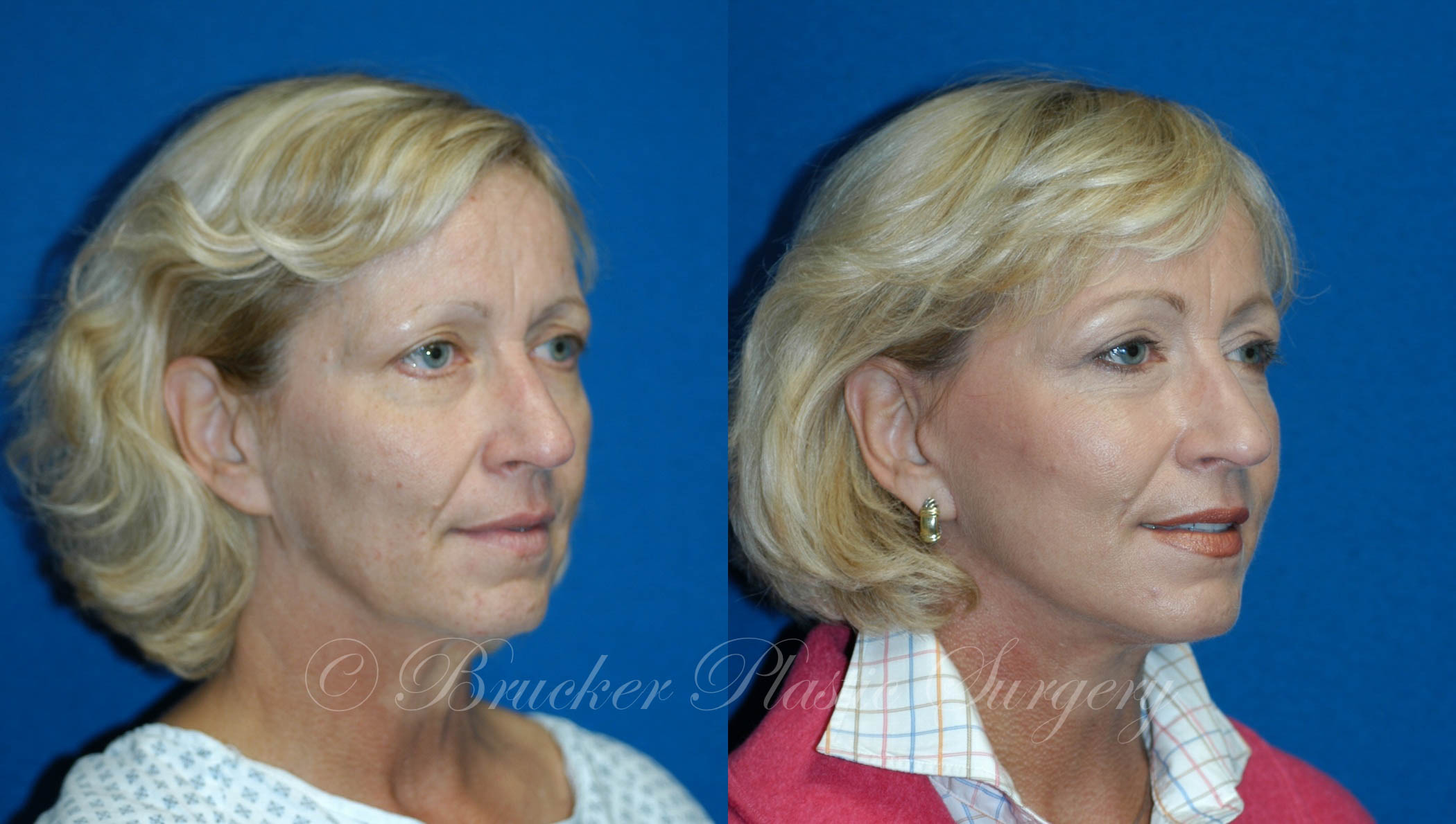 Facelift Del Mar Patient 1.1